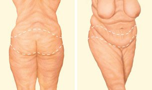body-lifit-incision