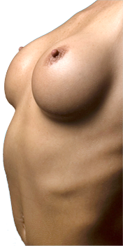 breast-aug