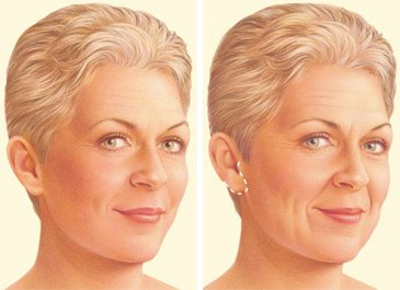 facelift-surgery-limited-incision