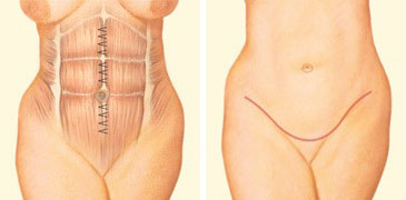 tummy-tuck-incision-front-abdomen-sutures