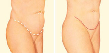 tummy-tuck-side-before-after