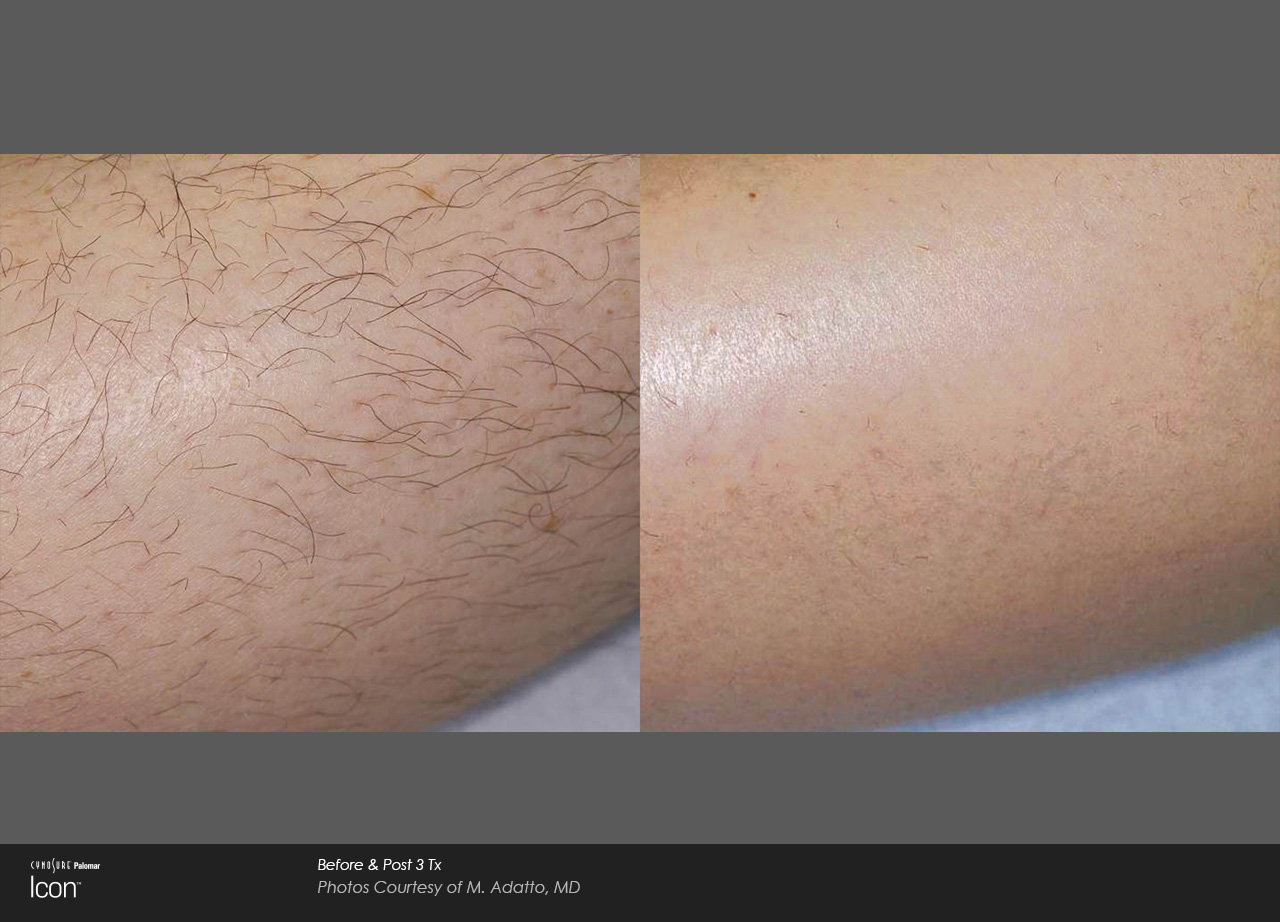 Laser Hair Removal | Ocala Plastic Surgery