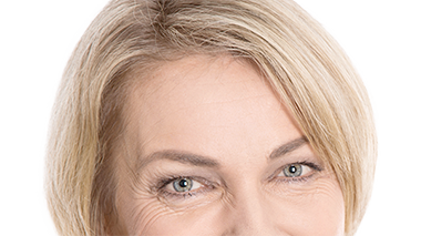 Before and after galleries of brow lift procedures