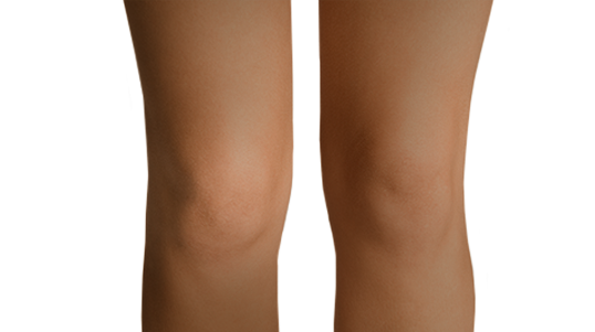 Before and after galleries of CoolSculpting procedures for the distal knee area