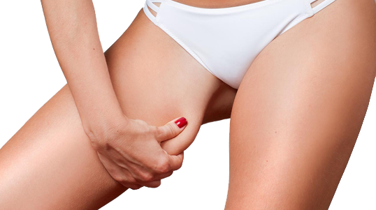 Before and after galleries of CoolSculpting procedures for the inner thigh area