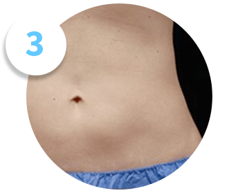 a flat stomach reveals the results of a CoolSculpting patient