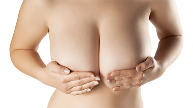 Before and after galleries of female breast reduction procedures