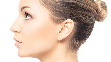 Before and after galleries of rhinoplasty procedures
