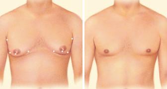 05_liposuction-combo-01-02