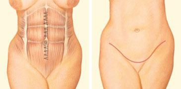tummy-tuck-incision-front-abdomen-sutures