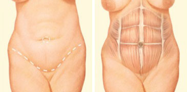 tummy-tuck-incision-front-abdomen
