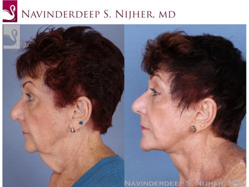 Face Lift Case #52784 (Image 3)