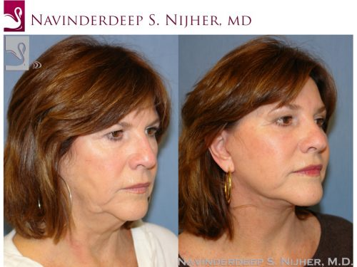 Face Lift Case #1195 (Image 2)