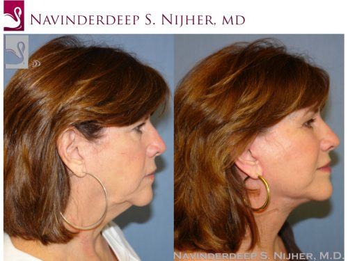 Face Lift Case #1195 (Image 3)
