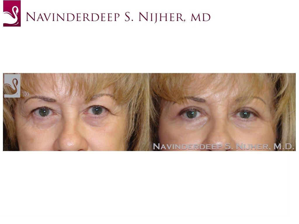 Eyelid Surgery Case #44894 (Image 1)