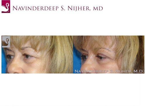 Eyelid Surgery Case #44894 (Image 2)
