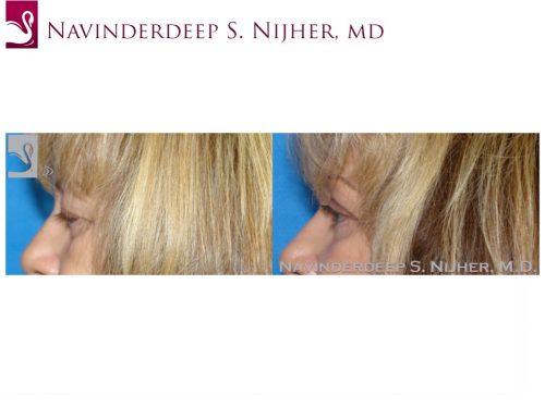 Eyelid Surgery Case #44894 (Image 3)