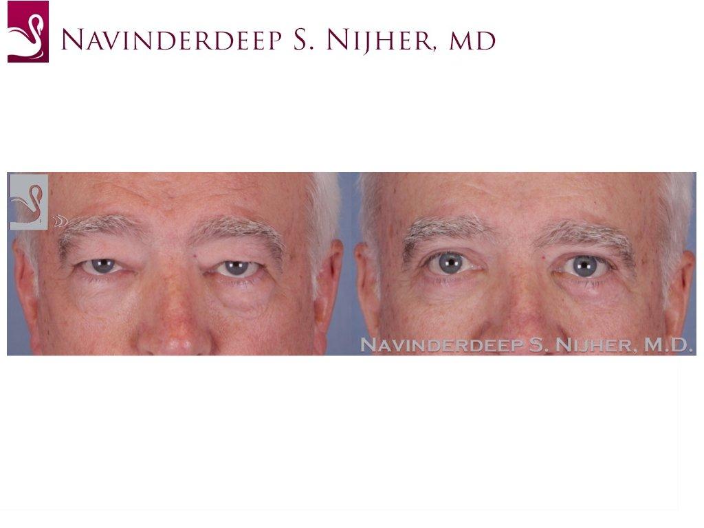 Eyelid Surgery Case #51894 (Image 1)
