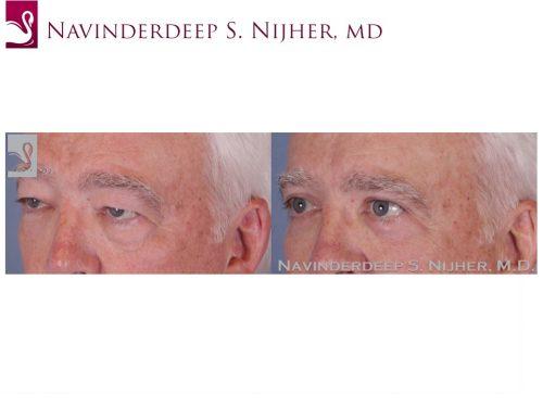 Eyelid Surgery Case #51894 (Image 2)