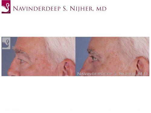 Eyelid Surgery Case #51894 (Image 3)