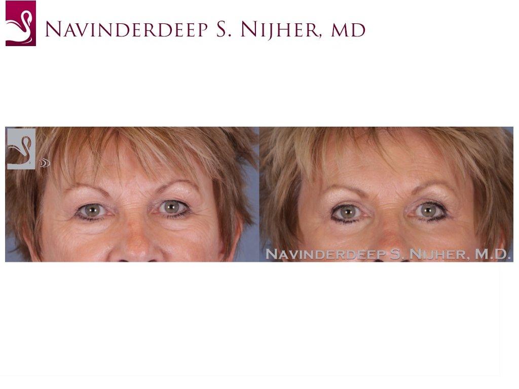 Eyelid Surgery Case #52089 (Image 1)