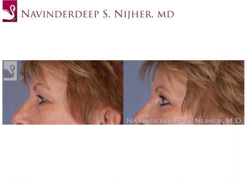 Eyelid Surgery Case #52089 (Image 3)