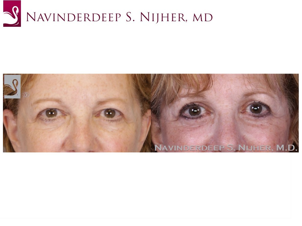Eyelid Surgery Case #52651 (Image 1)