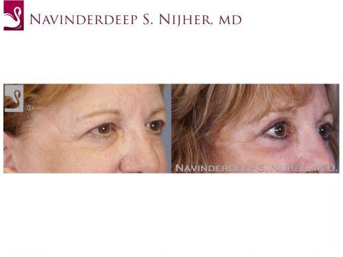 Eyelid Surgery Case #52651 (Image 2)