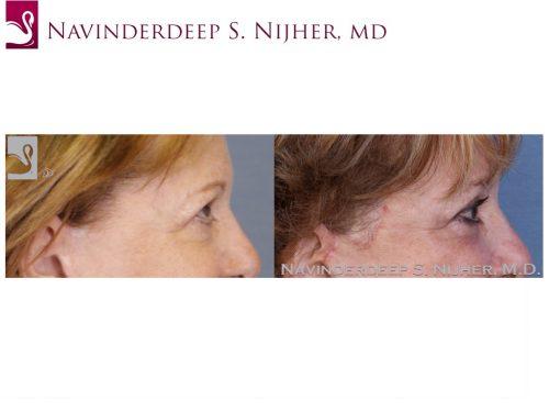 Eyelid Surgery Case #52651 (Image 3)