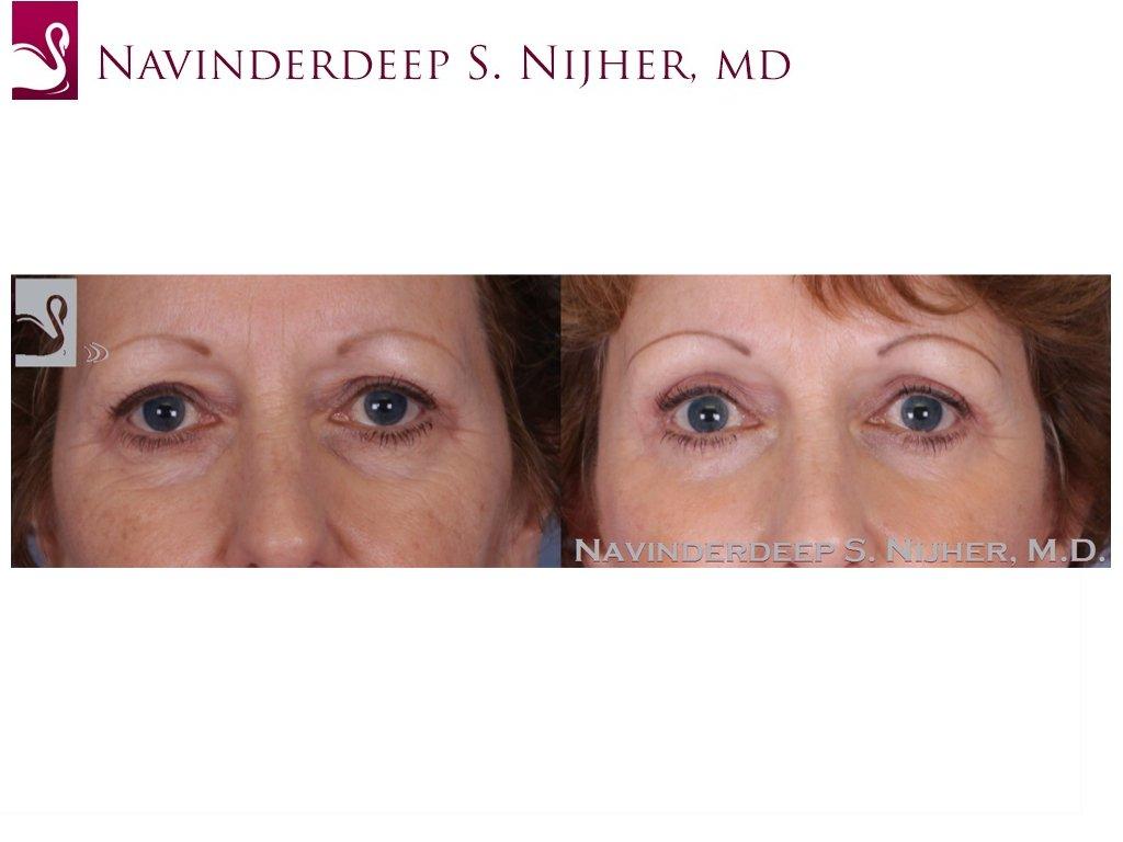 Eyelid Surgery Case #51160 (Image 1)