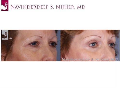 Eyelid Surgery Case #51160 (Image 2)