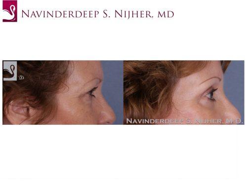Eyelid Surgery Case #51160 (Image 3)