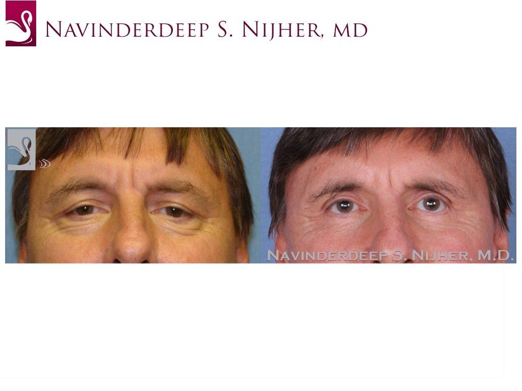 Eyelid Surgery Case #48316 (Image 1)