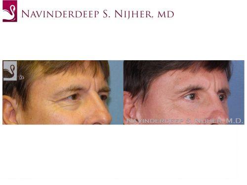 Eyelid Surgery Case #48316 (Image 2)