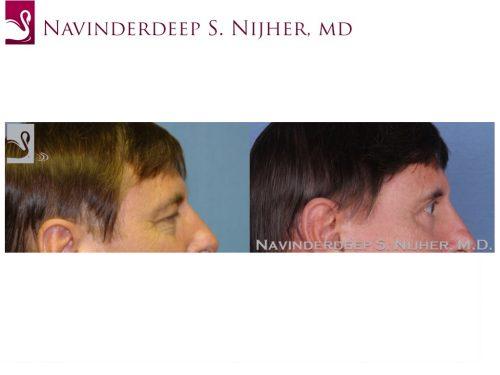 Eyelid Surgery Case #48316 (Image 3)