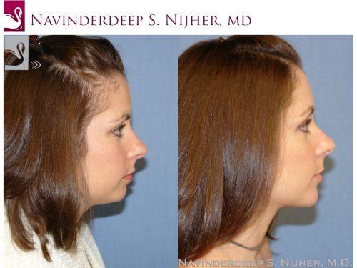 Facial Implants Case #42871 (Image 3)