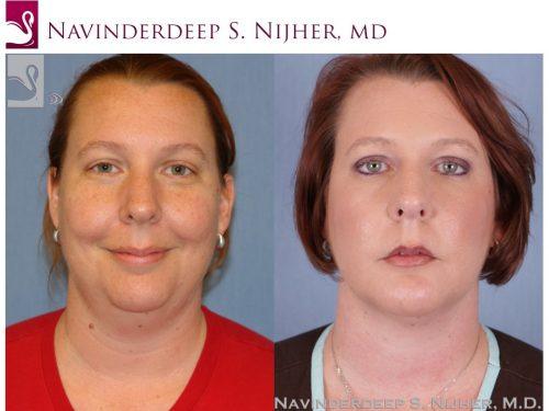 Facial Implants Case #48230 (Image 1)