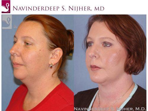 Facial Implants Case #48230 (Image 2)