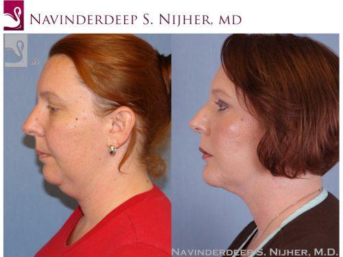 Facial Implants Case #48230 (Image 3)