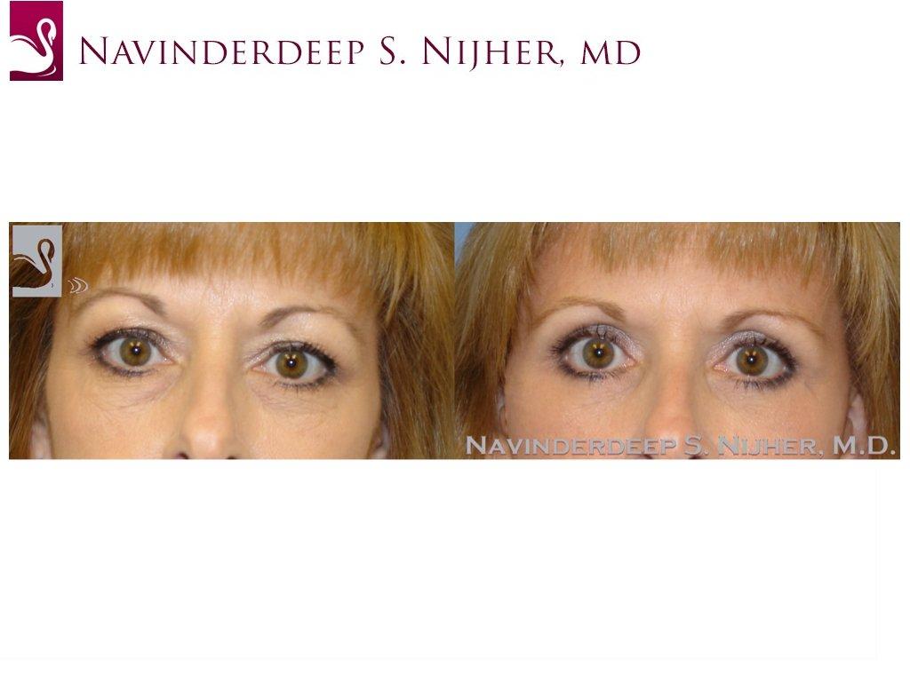 Eyelid Surgery Case #8797 (Image 1)