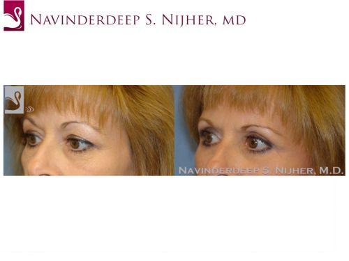 Eyelid Surgery Case #8797 (Image 2)