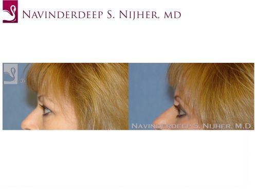 Eyelid Surgery Case #8797 (Image 3)