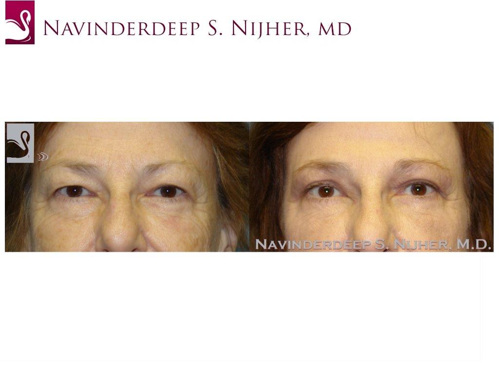 Eyelid Surgery Case #47695 (Image 1)