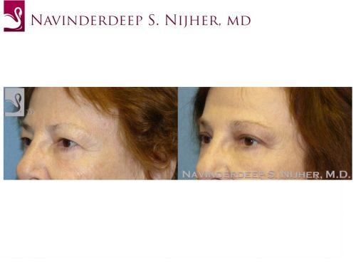 Eyelid Surgery Case #47695 (Image 2)
