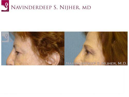 Eyelid Surgery Case #47695 (Image 3)