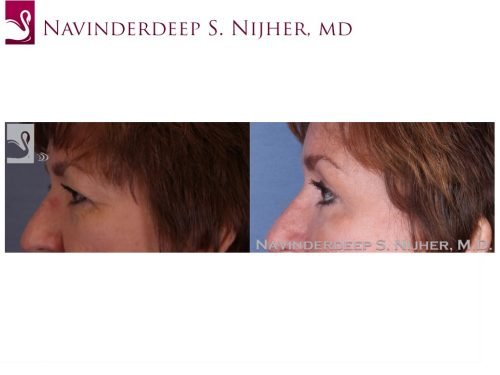 Eyelid Surgery Case #52348 (Image 3)