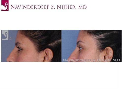 Eyelid Surgery Case #53270 (Image 3)