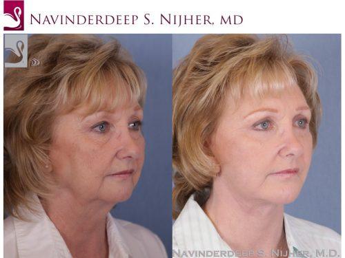 Facial Implants Case #985 (Image 2)