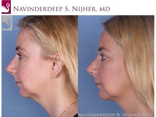 Facial Implants Case #54883 (Image 3)