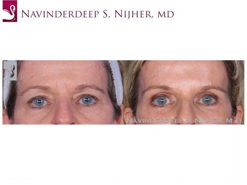 Eyelid Surgery Case #55011 (Image 1)